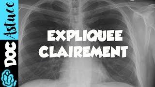 🔴 4 Dr Astuce - ANOMALIES RADIO THORAX EXPLIQUÉES CLAIREMENT ! (PARTIE 2)