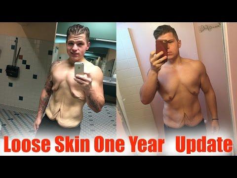 Loose Skin Progress (One Year) 170 Pound Weight Loss