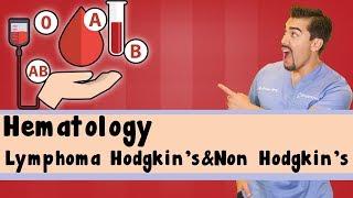Lymphoma (Hodgkin and Non Hodgkin Lymphoma) | NEET-PG| USMLE | MADE SIMPLE FOR YOU. 🙂.