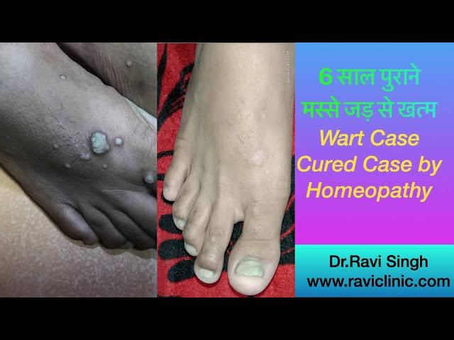 Warts for 6 years Cured by Homeopathy Dr.Ravi singh