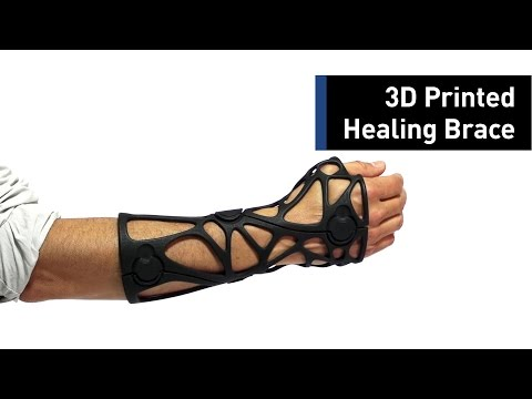Heal Broken Bones With a 3D-Printed Brace