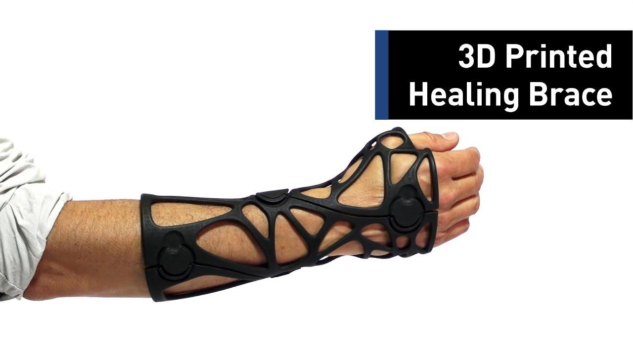 Heal Broken Bones With a 3D-Printed Brace