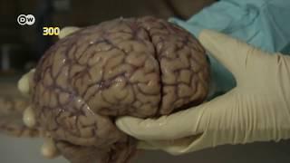 Apa Perbedaan Pikun karena Usia, Demensia, dan Alzheimer? | Health Corner.