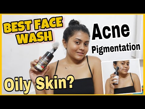 built-in-brush?-😱-best-face-wash-for-acne-prone-|-all-skin-types