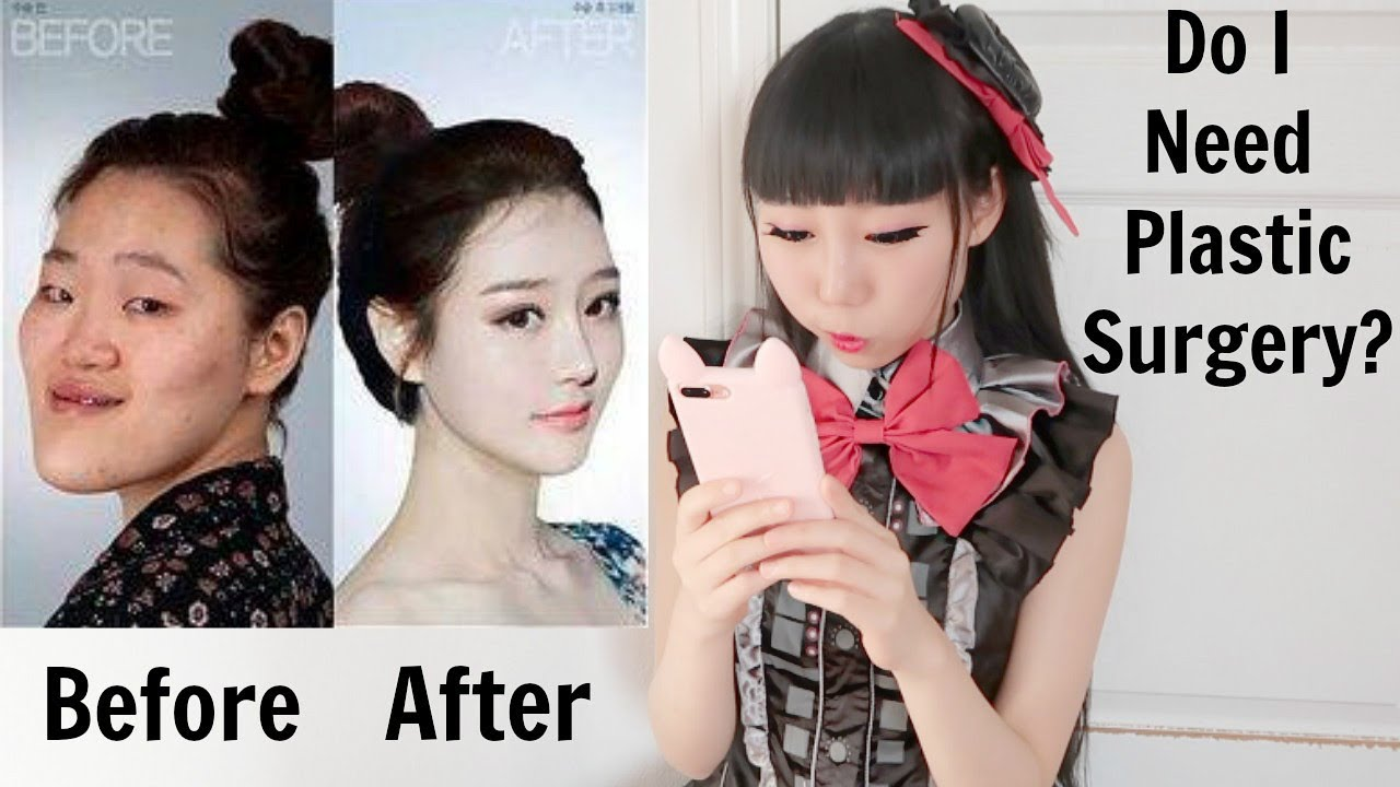 Korean Plastic Surgery Before Amp After Photos Reaction Do