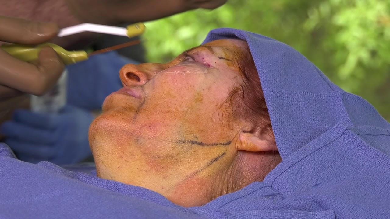 Accutite, Morpheus 8 & Facetite Skin Rejuvenation