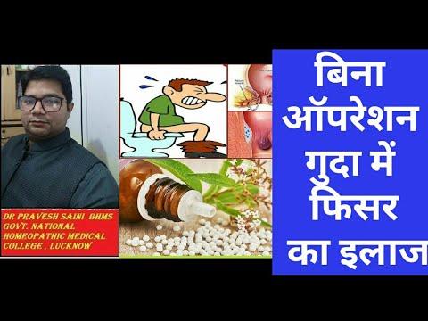 बिना ऑपरेशन गुदा में फिसर का इलाज, fissure ka ilaj, fissure Homeopathic medicine, guda chir ka ilaj
