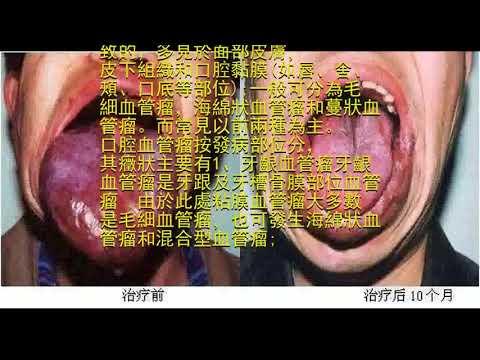 口腔血管瘤,竟是個偽裝高手