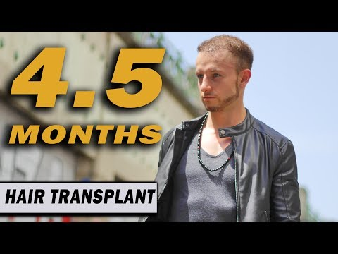 FUE Hair Transplant 4 5 Months (post op) Istanbul, Turkey GROWTH STAGE