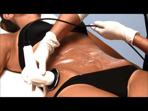 EME - Radiofrequency treatment on the belly