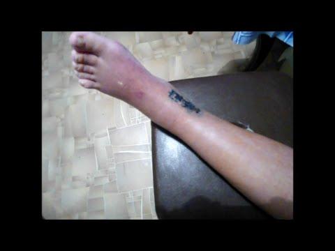 Гипс при переломе лодыжки сняли , внешний вид ноги, перевязка ...