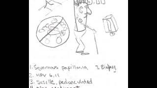Squamous Papilloma
