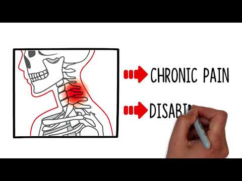 Chiropractor in Raleigh NC For Car Accident Injuries Carolina ChiroCare and Rehab