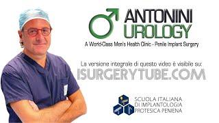 Repeat youtube video Espianto e reimpianto protesi peniena idraulica Dott  Gabriele Antonini Andrologia Chirurgica Ricost