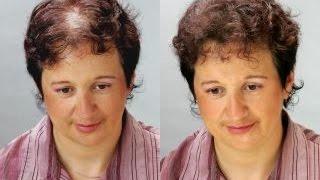видео Мифы о лечении волос, все о восстановлении и здоровье волос  Врач трихолог