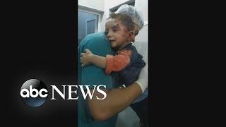 Aleppo Boy Refuses To Let Go Of Nurse