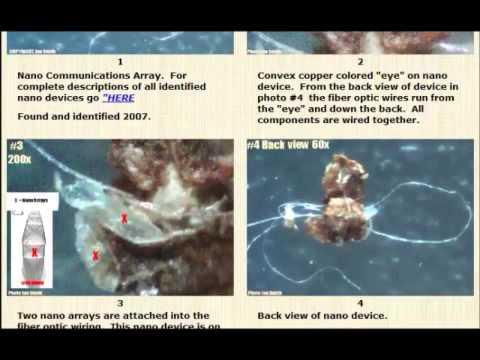 Morgellons nanotech