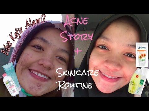 MY ACNE STORY + SKIN CARE ROUTINE for ACNE SKIN | CERITA LAWAN JERAWAT + SKINCARE JERAWAT (INDONESIA