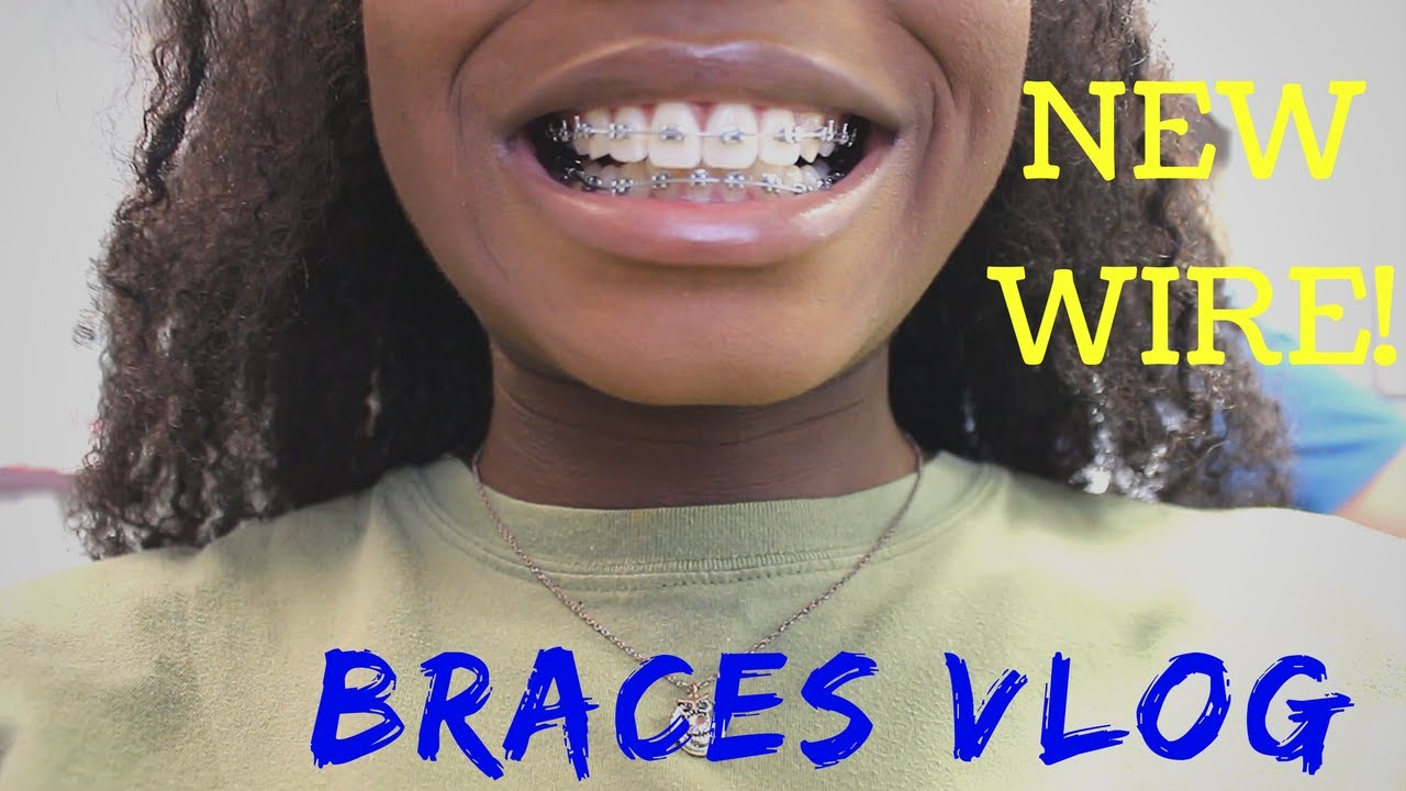 Braces Update New Wire New Color And More Rubber Bands