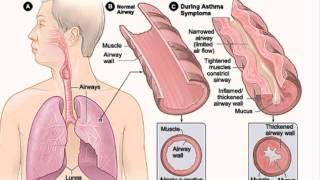 ☁ Asthma   Asthma Treatment   Asthma Symptoms ☁