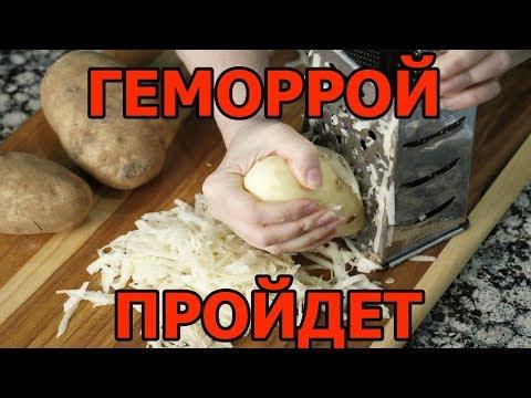 Эффективные народные средства для лечение геморроя (Рабочие рецепты)