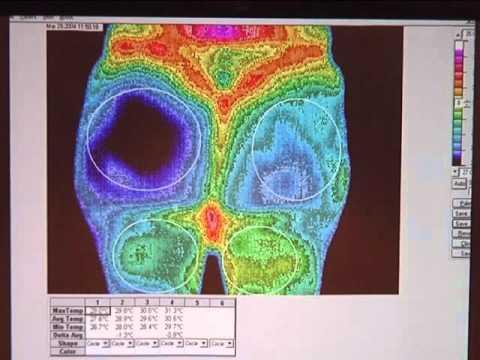 Imaging The Spread Of CRPS - Phillip Getson, DO, Drexel University, Philadelphia, PA - RSDSA