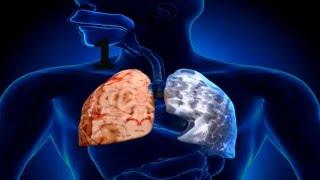 ☞ 6 Remedios  caseros para la enfermedad pulmonar obstructiva crónica EPOC
