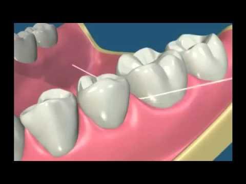 c04c21397 Como passar o fio dental corretamente . - YouTube