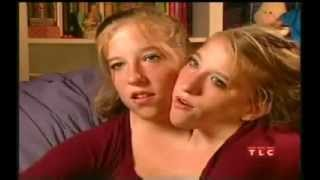 Abby brittany hensel. Conjoined twins. (Abigail Brittany Hensel) turn 16. Twins Who Share a Body