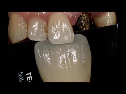 How To Mimic Natural Teeth | Dental Lab Technician Learning