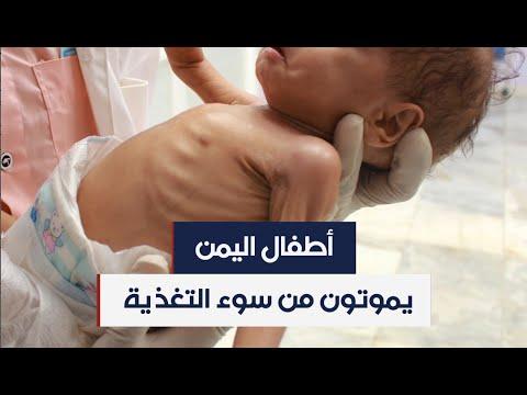 أجساد هزيلة ووجوه منهكة.. أطفال اليمن مهددون بسوء التغذية والمجاعة  - 19:00-2020 / 7 / 7