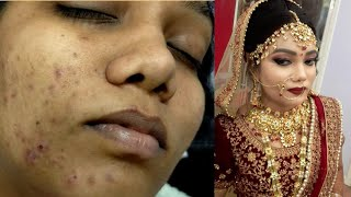 Real bridal HD Makeup for dark & acne skin for beginners //step by step easy & simple method(2020)