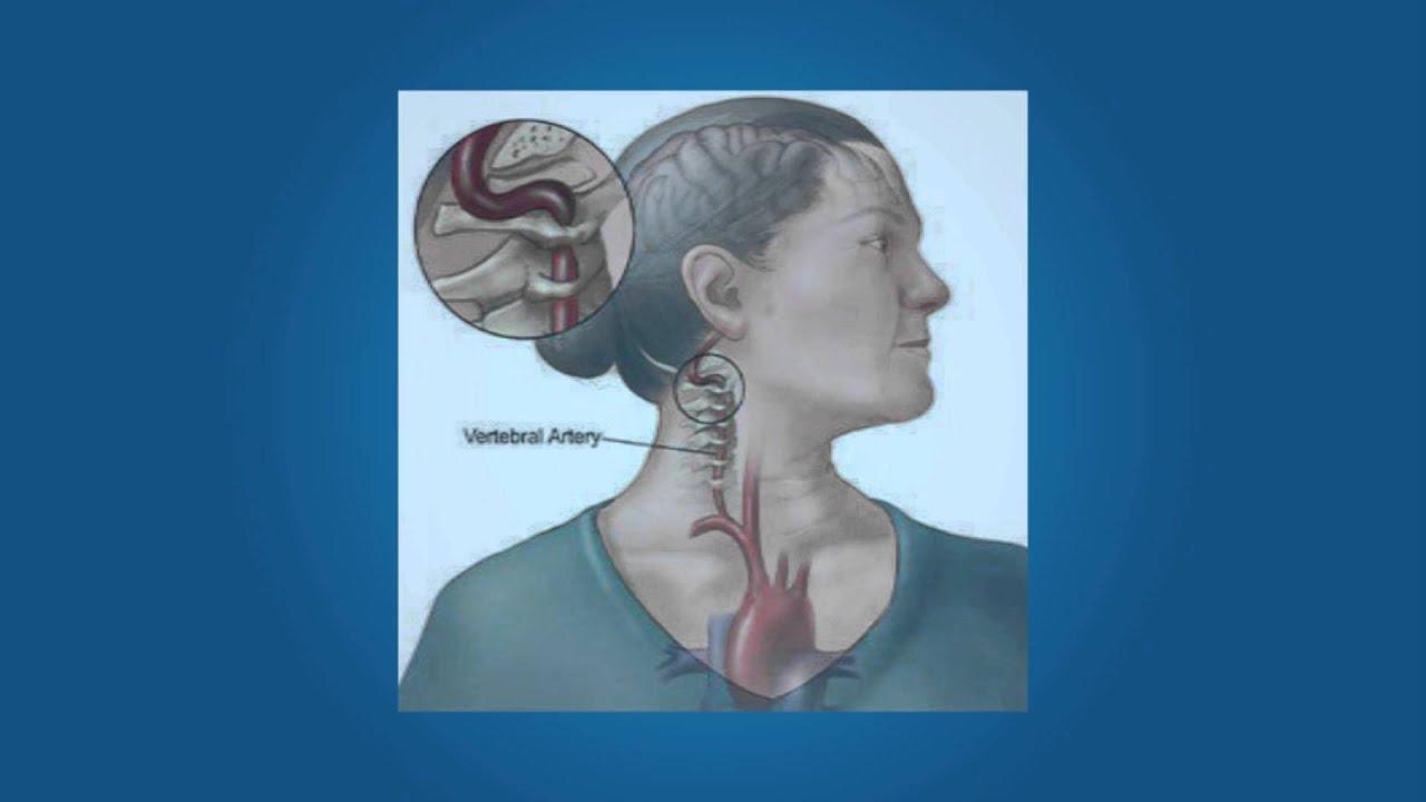 Prueba de la arteria vertebral - YouTube