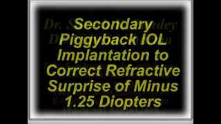 Piggyback IOL Implantation to Correct Refractive Surprise of Minus 1 25 Diopters Dr Suresh K Pandey
