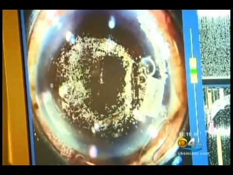 Cataract Surgery Surgeon Andrew Shatz & LenSx Laser are featured on CBS News