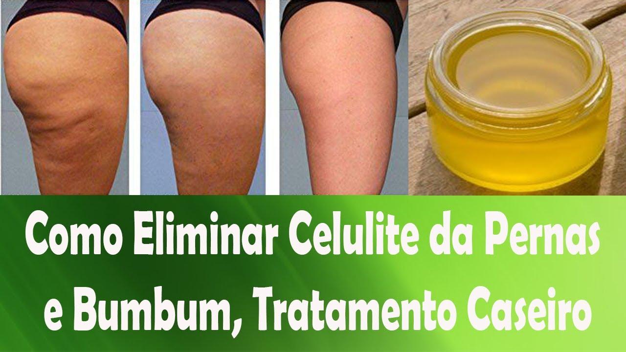 como remover celulite das pernas