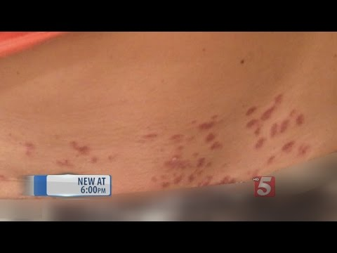 Woman Claims She Was Burned By Laser Hair Removal Youtube