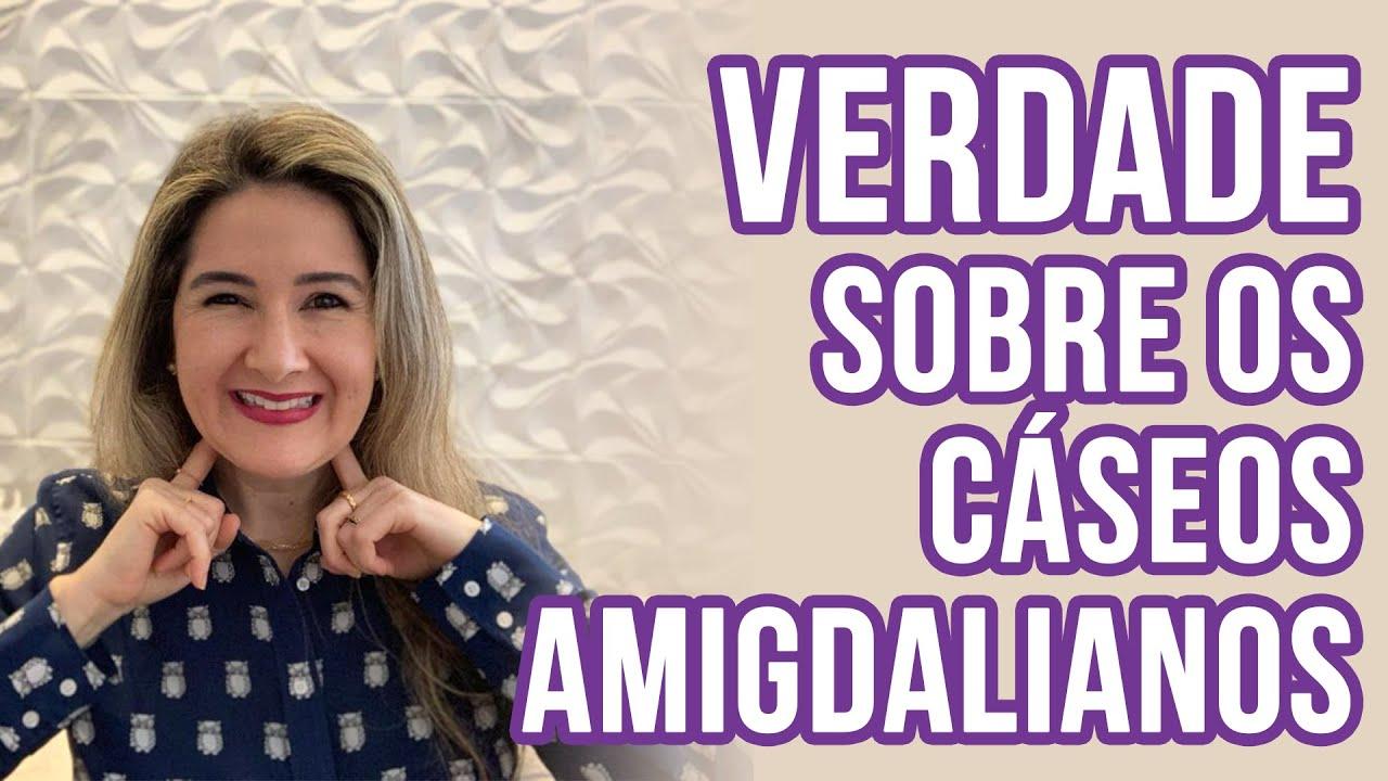 A VERDADE SOBRE CÁSEOS AMIGDALIANOS