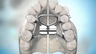 Surgically Assisted Palatal Expansion