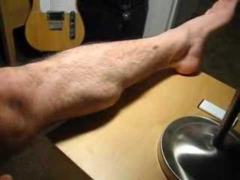 My muscle cramps when I flex it - YouTube