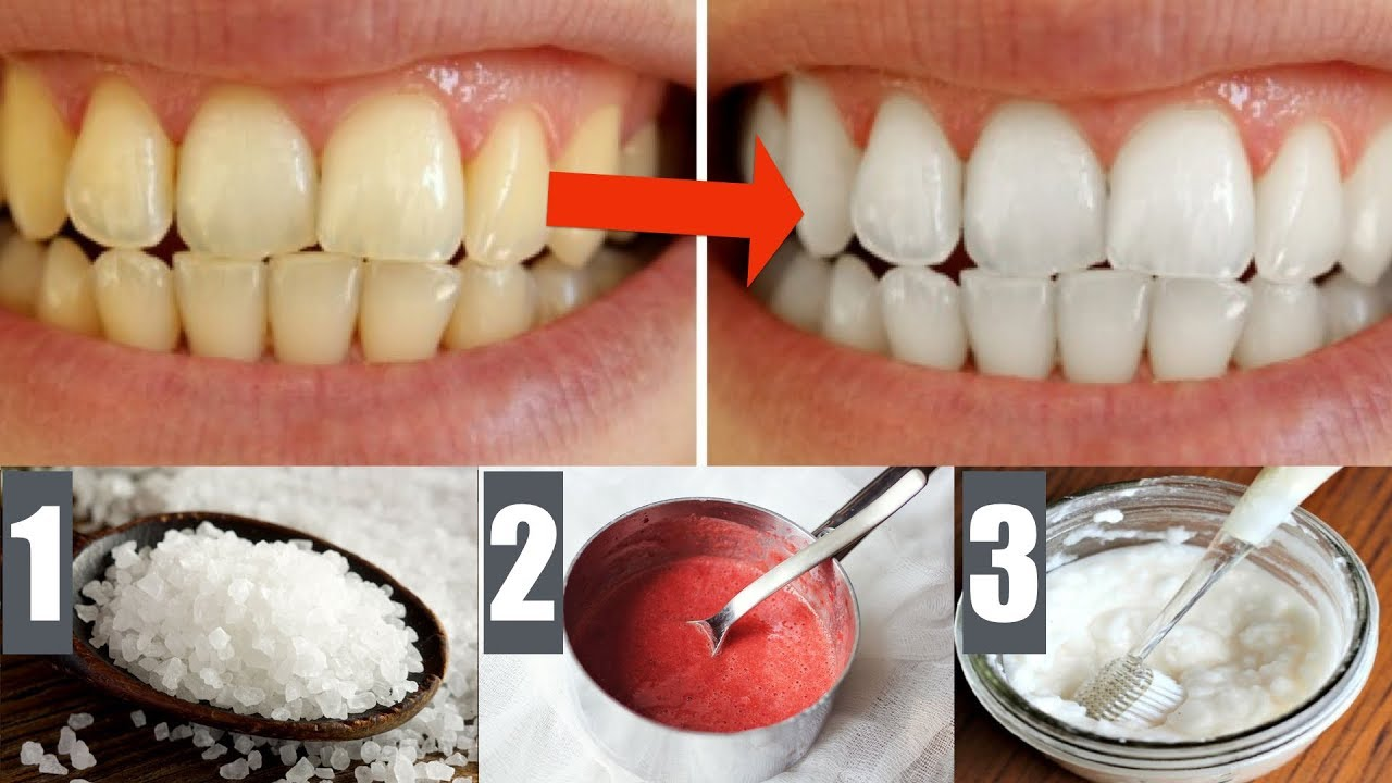 recipe: apple cider vinegar and baking soda for teeth [10]