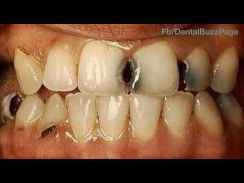 gv blacks classification of dental caries youtube