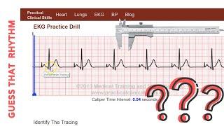 Pacemaker ecg strips ⭐ Interpretation of