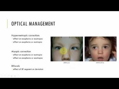 Optical Management