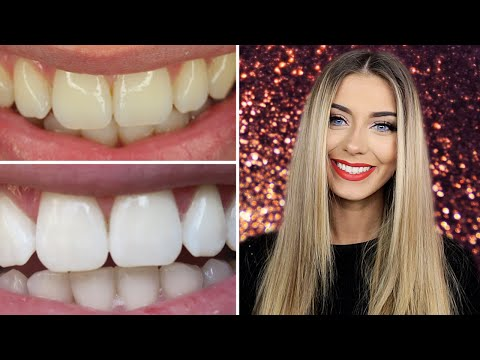 How I Whitened My Teeth at Home | Danielle Mansutti