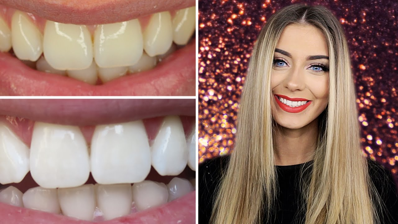 How I Whitened My Teeth At Home Danielle Mansutti Youtube