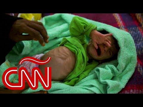Niños mueren de hambre por desvío de ayuda humanitaria en Yemen