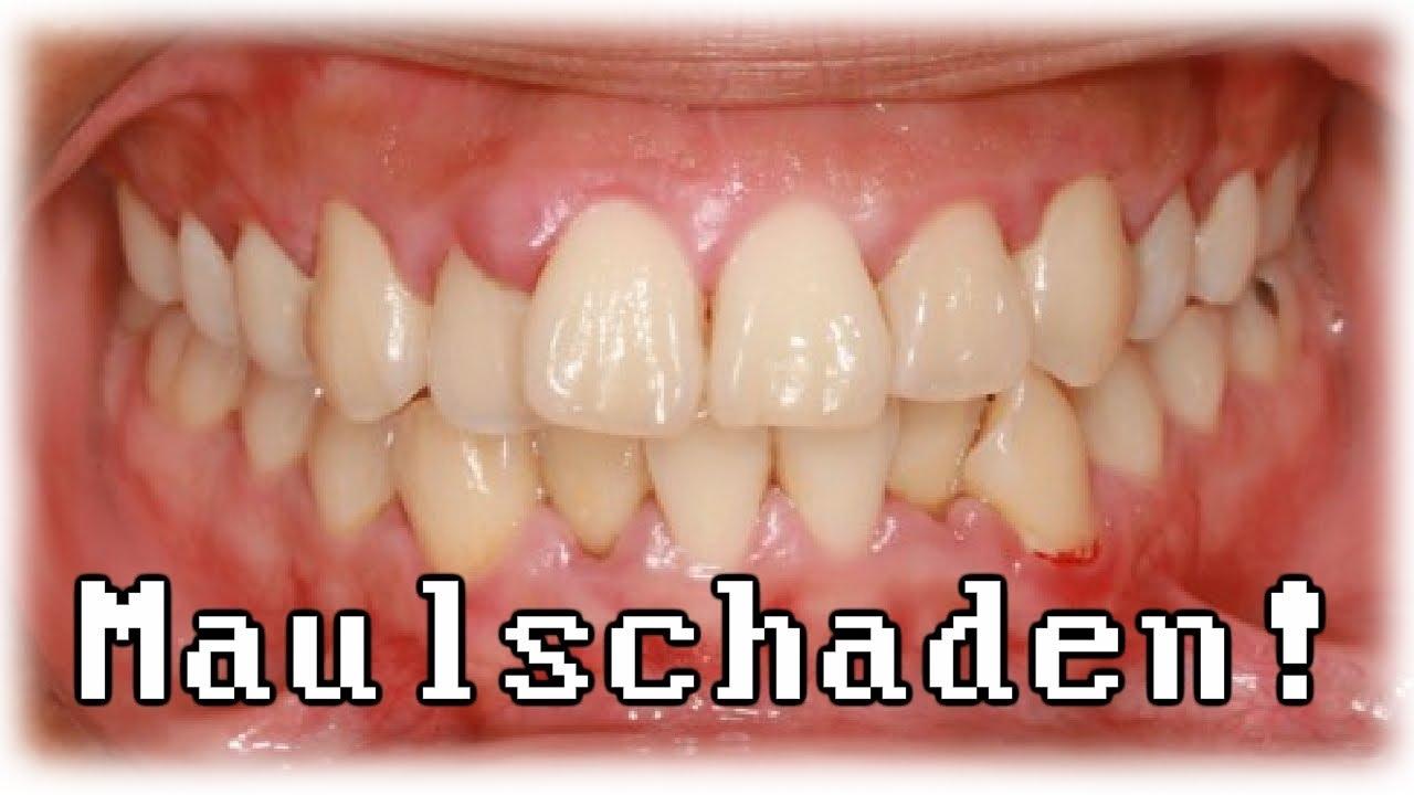 Zahnfleischentzündung - YouTube