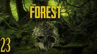 LO QUE FALTA 2 - THE FOREST - EP 23