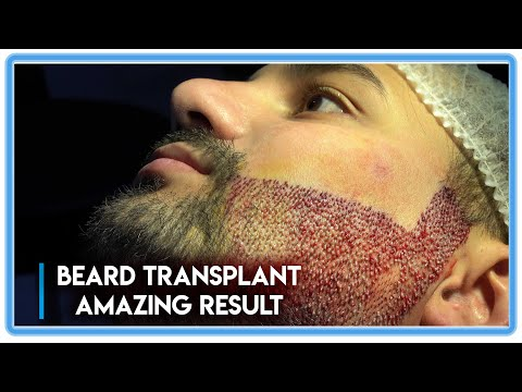 fue-surgery:-beard-transplant-amazing-results-[before-after]